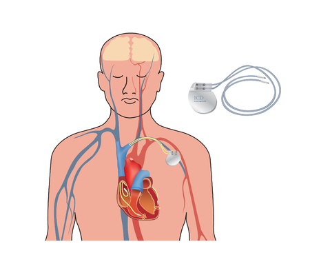 Heart pacemaker. Human heart anatomy cross section with working implantable cardioverter defibrillator.
