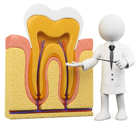 tooth root: 3d white person with a schematic tooth section. 3d image. Isolated white background.  Stock Photo