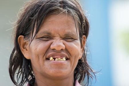 mujer fea: Una anciana con buena cara graciosa
