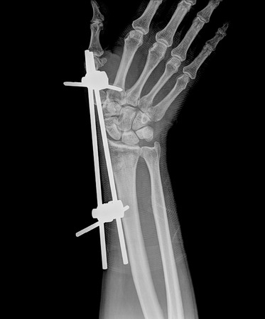 thumb x ray: x-ray hand ( Hand Postero-anterior  ) on black background