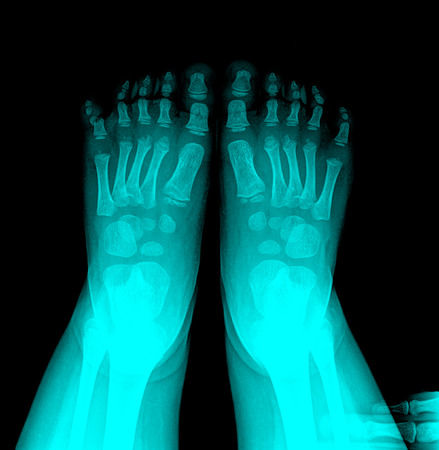 radiological: closeup image of classic xray image of chile feet Stock Photo