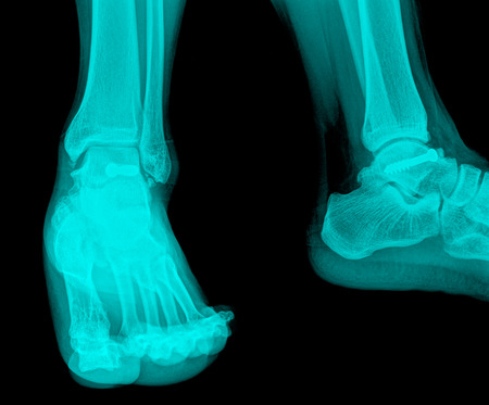 X-ray image of leg