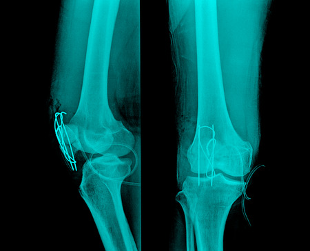 x-ray image of painful knee joint photo