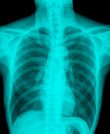 X-Ray Image Of Human Chest for a medical diagnosis Stock Photo
