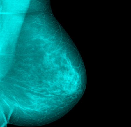 mammography breast scan X-ray image