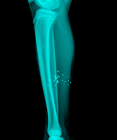 X-ray image of shin , side view