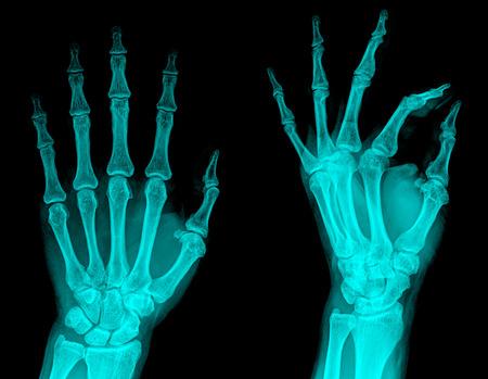 radiography: examining a hand radiography Stock Photo