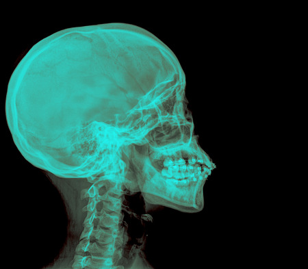 mandible: photo of side x-ray picture of human skull in natural colors