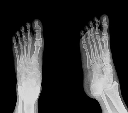 rentgen: black and white photo of x-ray picture of human foots