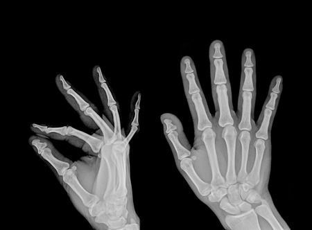 black and white photo of x-ray picture of human hands photo