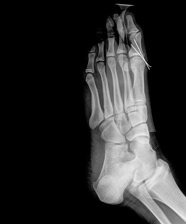 Rheumatoid arthritis , Gouty arthritis X-ray humans foots and arthritis at metatarsophalangeal joint photo