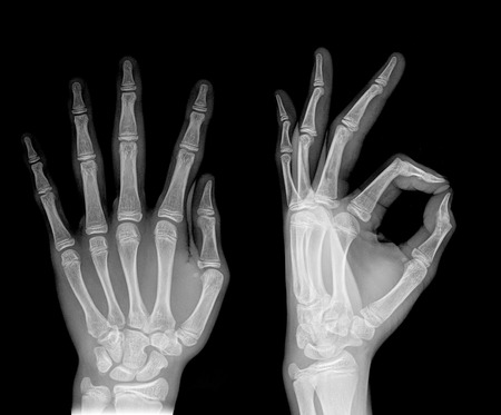 rentgen: black and white photo of x-ray picture of human hands Stock Photo