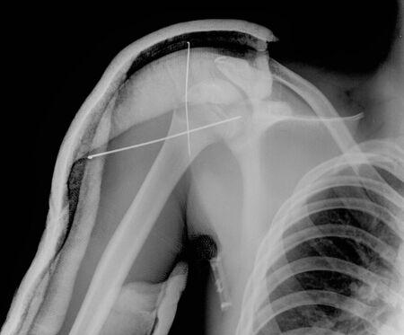 collarbone: X- ray of collarbone Stock Photo