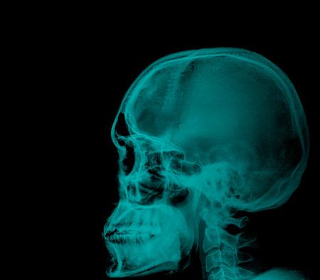 radiological: Human head x-ray film