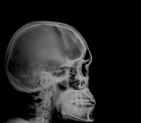 Human head x-ray film photo