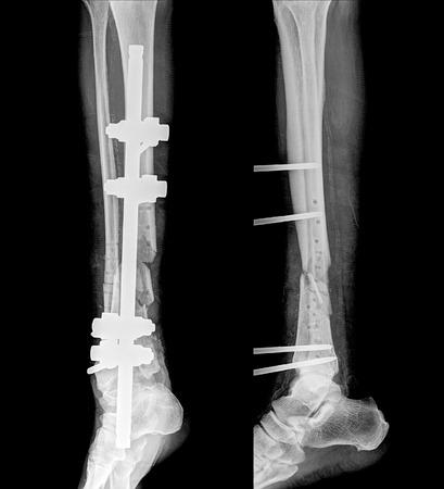 X-ray film of broken leg