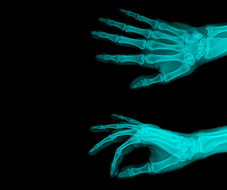 radiation therapy: Human Left hand x-ray - Medical Image