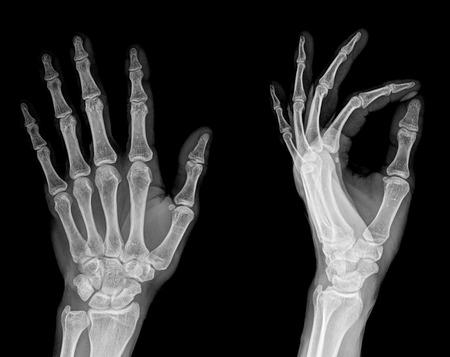 Menselijke Linkerhand x-ray - Medical Image Stockfoto