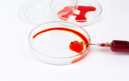 Syring extracting sample from petri dish photo