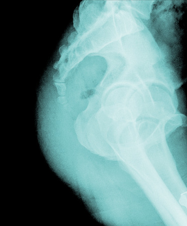 X-ray lumbo-sacral spine (lateral) of asian adult people