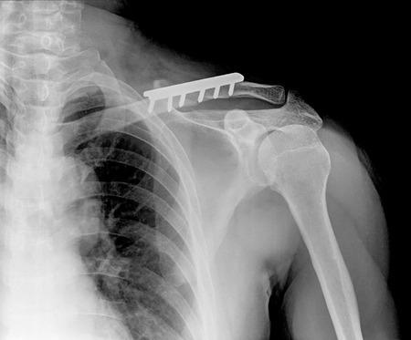 fractura: Rengs instant�nea de la articulaci�n del hombro con un perno, radiograf�a
