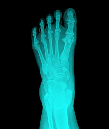 Top view of humans feet bones under x-ray