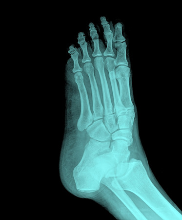 X-ray picture of foot photo