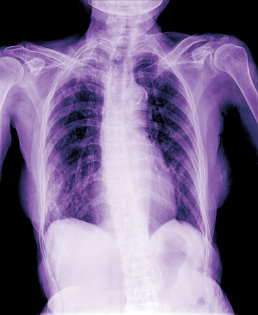 chest xray: film chest X-ray of old patient Stock Photo