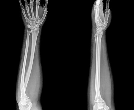 Arm x-ray , two position Stock Photo