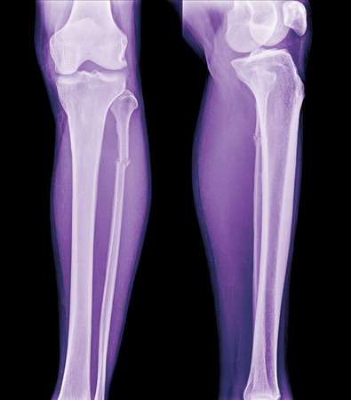 articular: X-ray film of proximal tibia and intra articular fracture