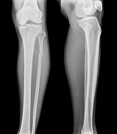 X-ray film of proximal tibia and intra articular fracture Stock Photo - 39097964