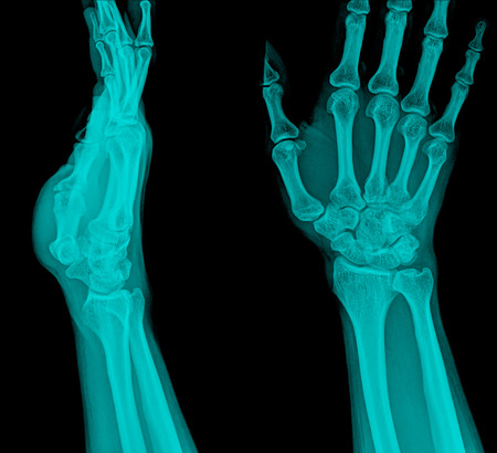 distal: radiograf�a de la fractura distal del radio (fractura de Colles) (mu�eca rota) Foto de archivo