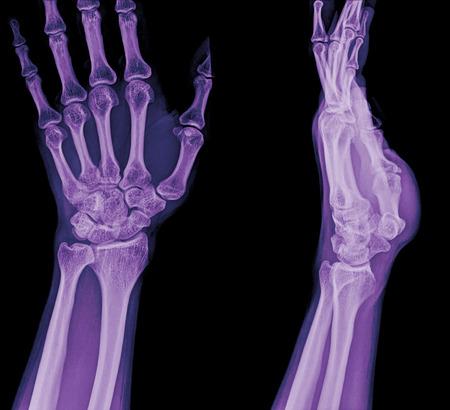 radius: xray fracture distal radius (Colles fracture) (wrist broken)