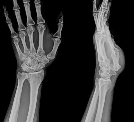distal: xray frattura del radio distale (frattura di Colles ') (polso rotto)
