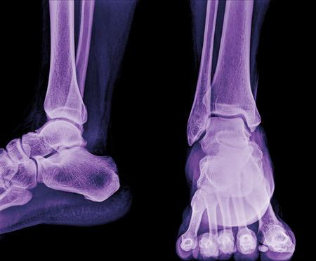 luxacion: Primer plano de la radiografía de tobillo