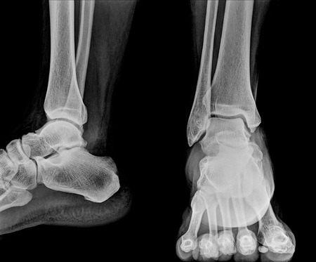 dislocation: Close up  x-ray of ankle