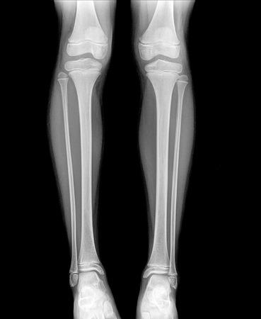 proximal: xray of normal leg childe image Stock Photo