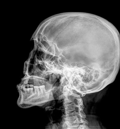 jawbone: X-ray Head