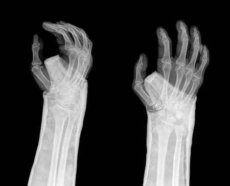 distal: fracture distal radius (Colles fracture) and cast , 2 position Stock Photo