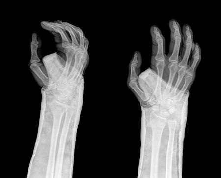 radius: fracture distal radius (Colles fracture) and cast , 2 position Stock Photo