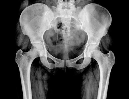 anatomia: De rayos X de la pelvis y la columna vertebral de una mujer  Foto de archivo