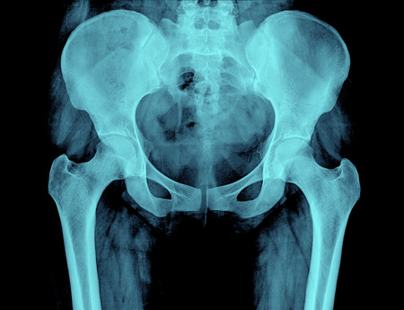 spinal column: X-ray of the pelvis and spinal column of a woman