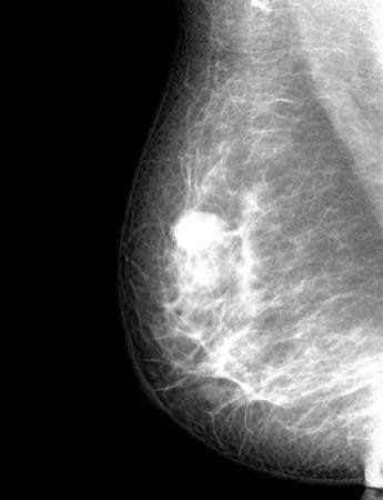 X-ray mammogram beeld van borst met kanker Stockfoto