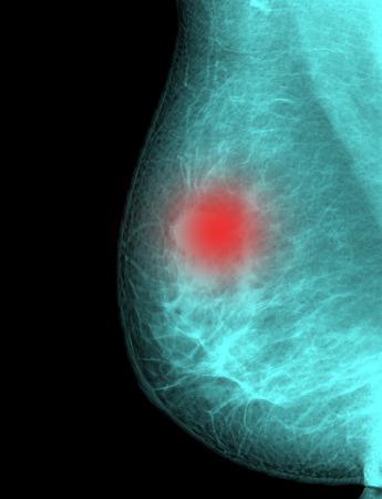 X-ray mammogramafbeelding van borstkanker