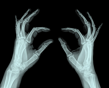 thumb x ray: x-ray 2 hand ( Hand Lateral ) on black background Stock Photo