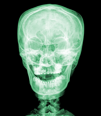 jawbone: X-ray picture of the skull , green colur Stock Photo
