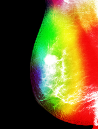 cancer screening: X-ray mammogram image of breast with cancer