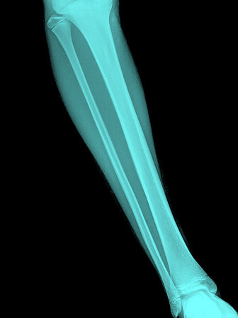 X-ray image of shin , front view Stock Photo