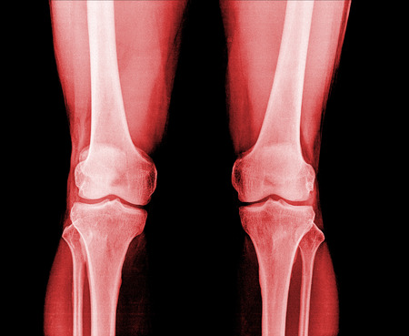 Knee x-ray red colur photo