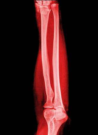 front side: X-ray forearm ( front , side ),red image